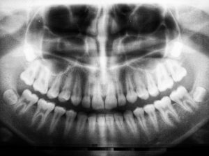 Diagnostic_xray_rarely_appliances_Vital_considerations_Tooth_Whitening_Petrichoresis.com