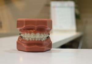 Orthodontic_appliances_in_vital_considerations_white_bright_teeth_whitening_petrichoresis.com